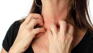 Нервная аллергия симптомы