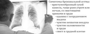 Лекарства при бронхиальной астме