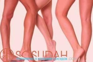 Венозный дерматит на ногах