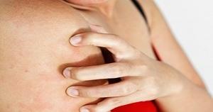 Аллергия крапивница причины