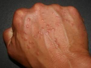 Аллергия на клещей домашней пыли