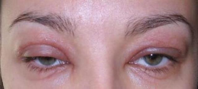 Аллергия на тушь